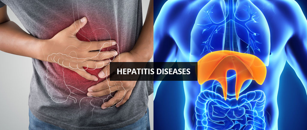 Hepatitis-Diseases